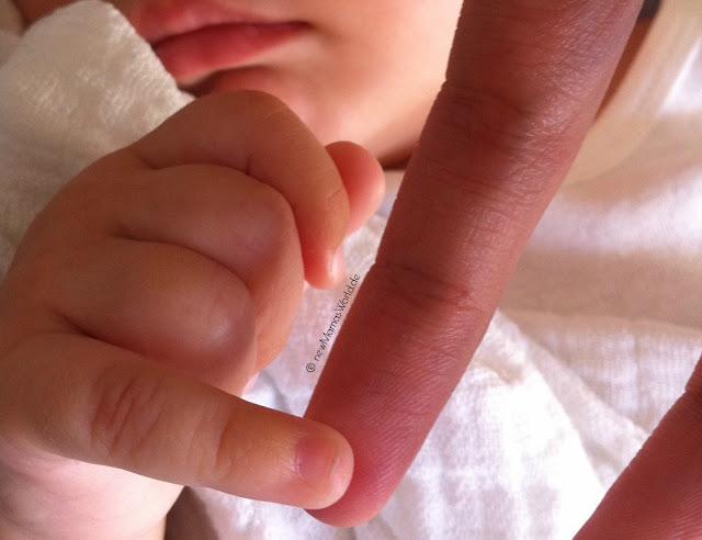 Unsere Geburt wird ein Kaiserschnitt – und wir freuen uns!